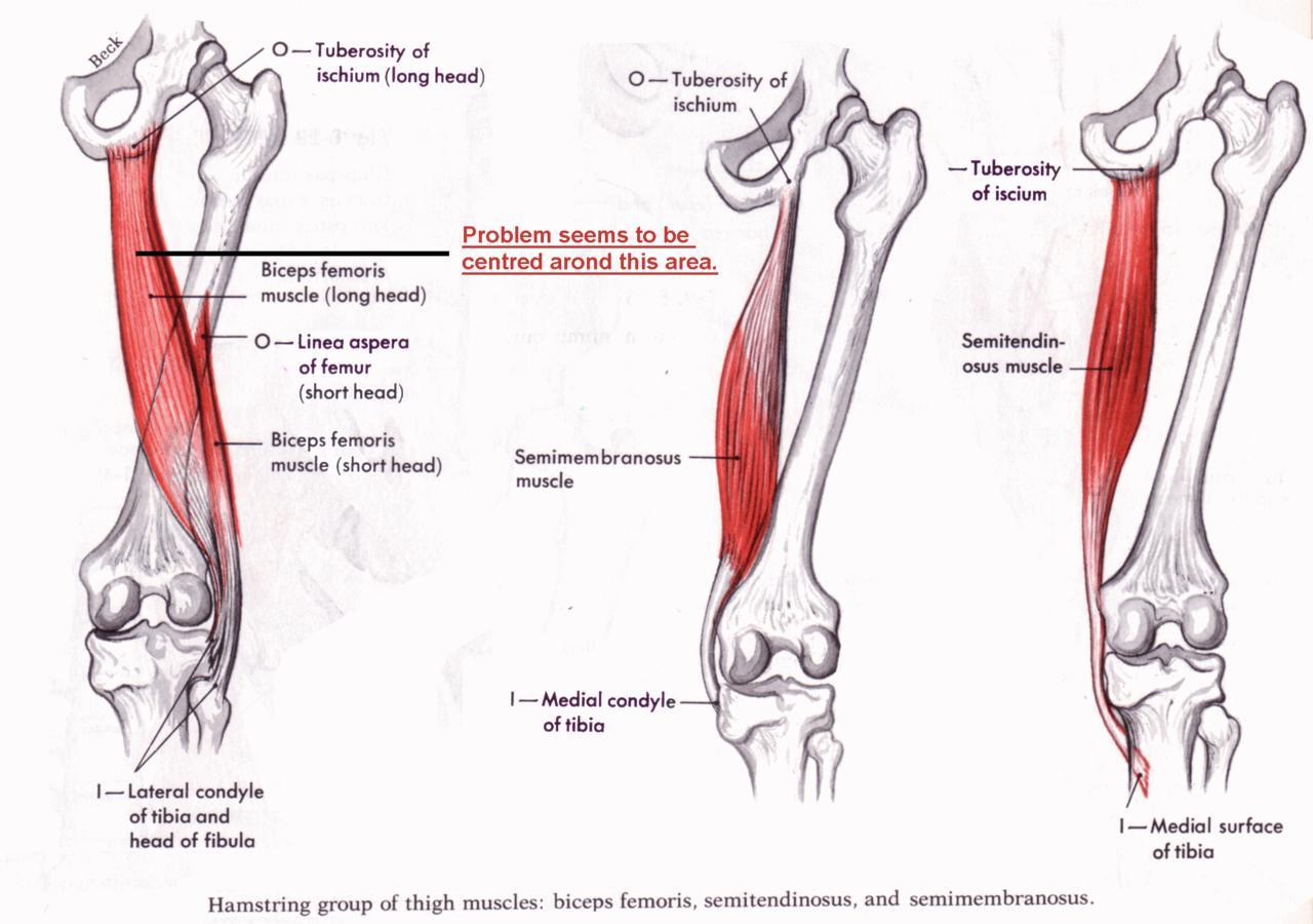 Hamstring Muscles Diagram